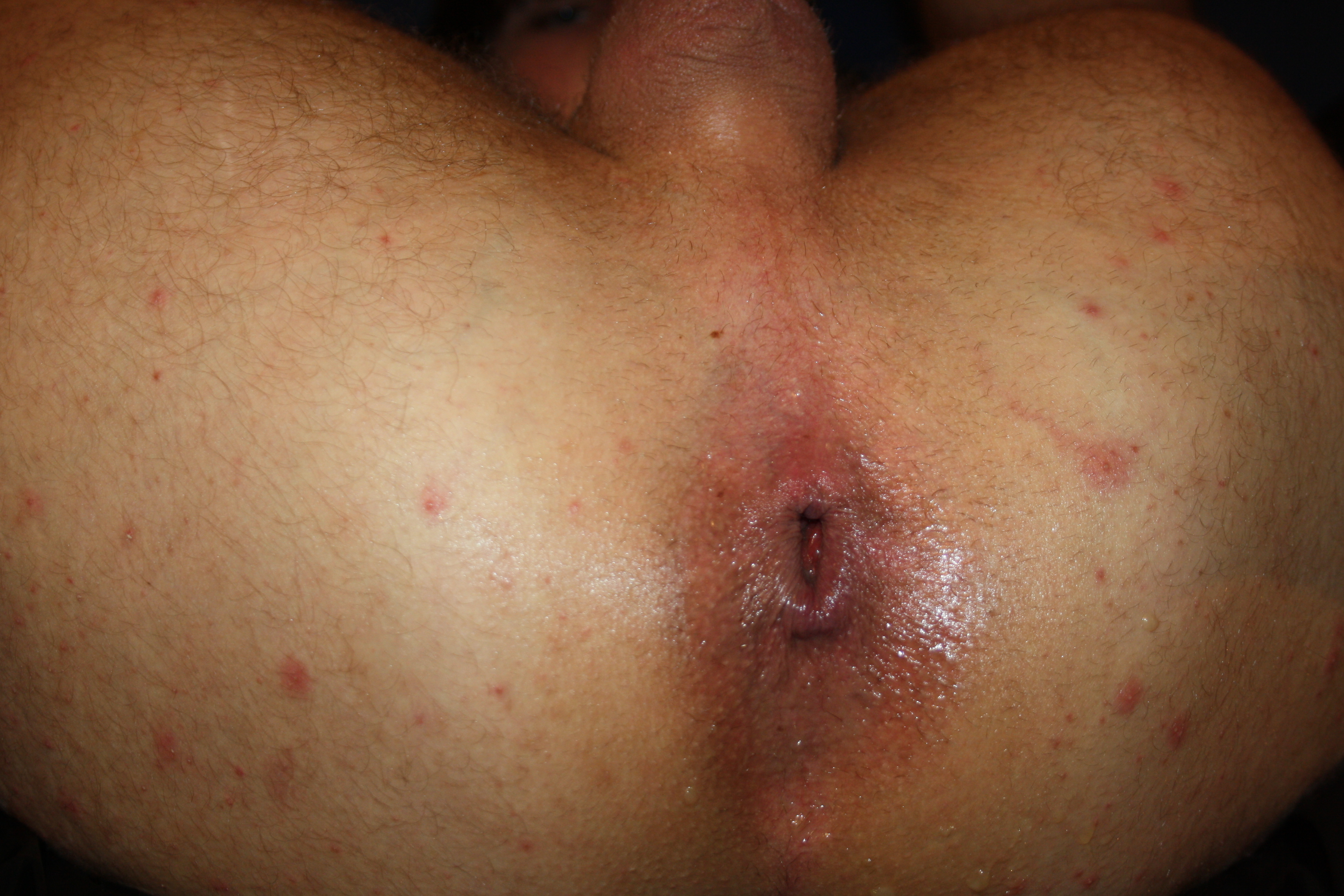 Steiferluemmel