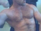 -gP hairy muscle